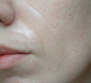 Gidrogelevaya maska dlya nosogubnyh skladok MEDIHEAL EGT Timetox Gel Smil Line Patch 1
